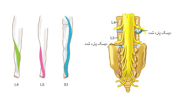 Image result for توضیحات درباره التهاب دیسک کمری