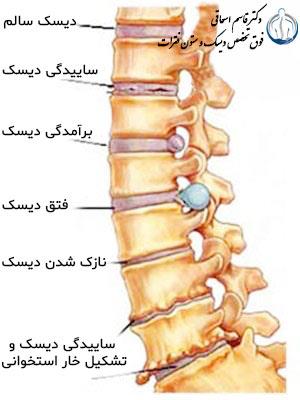 Types of lumbar disc disease