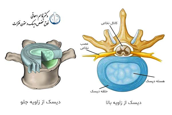 Multiple sections of lumbar disc